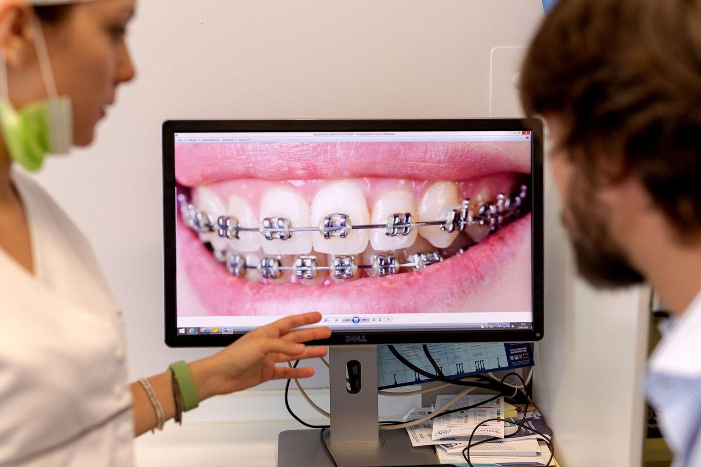 Ortodonzia del bambino e dell'adulto - Studio Dori